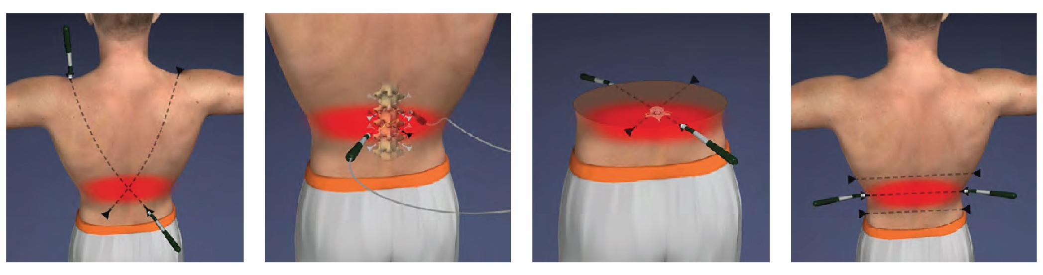 back-pain-171