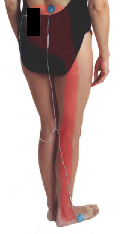 leg-pain-27